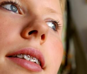 Зубные брекеты (брэкеты) для вашей красивой улыбки