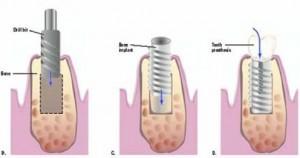 Возможные осложнения после имплантации